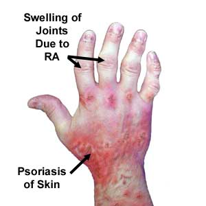 psoriaticarthritissymptoms3
