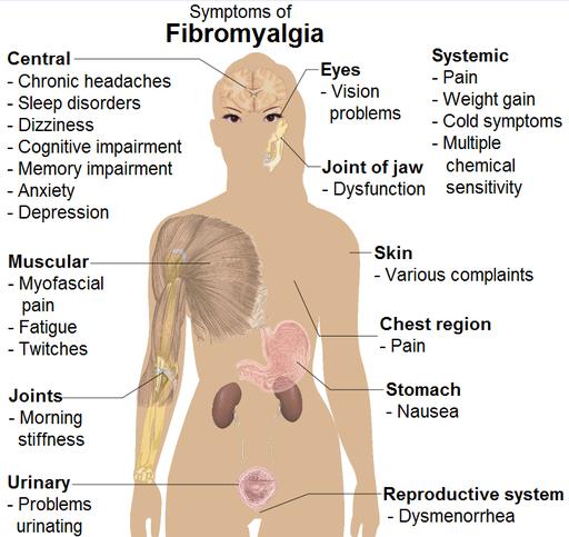 fibromyalgia pic